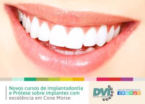 Implantodontia e Prótese Sobreimplantes